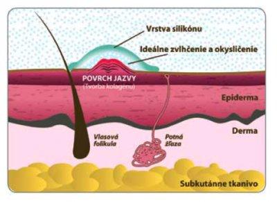 Liečba jaziev a silikón