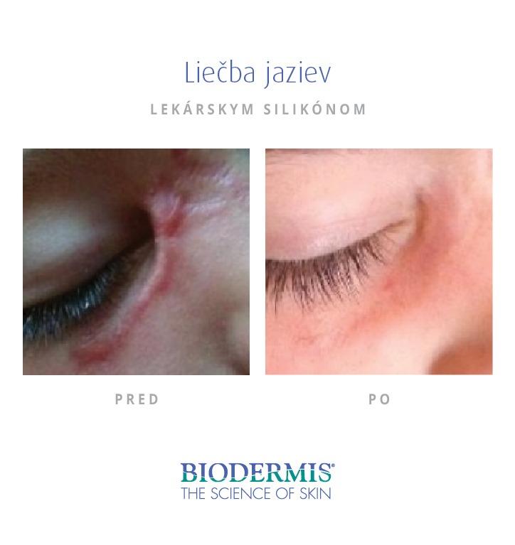 Biodermis - Jazva pri oku - odstránenie